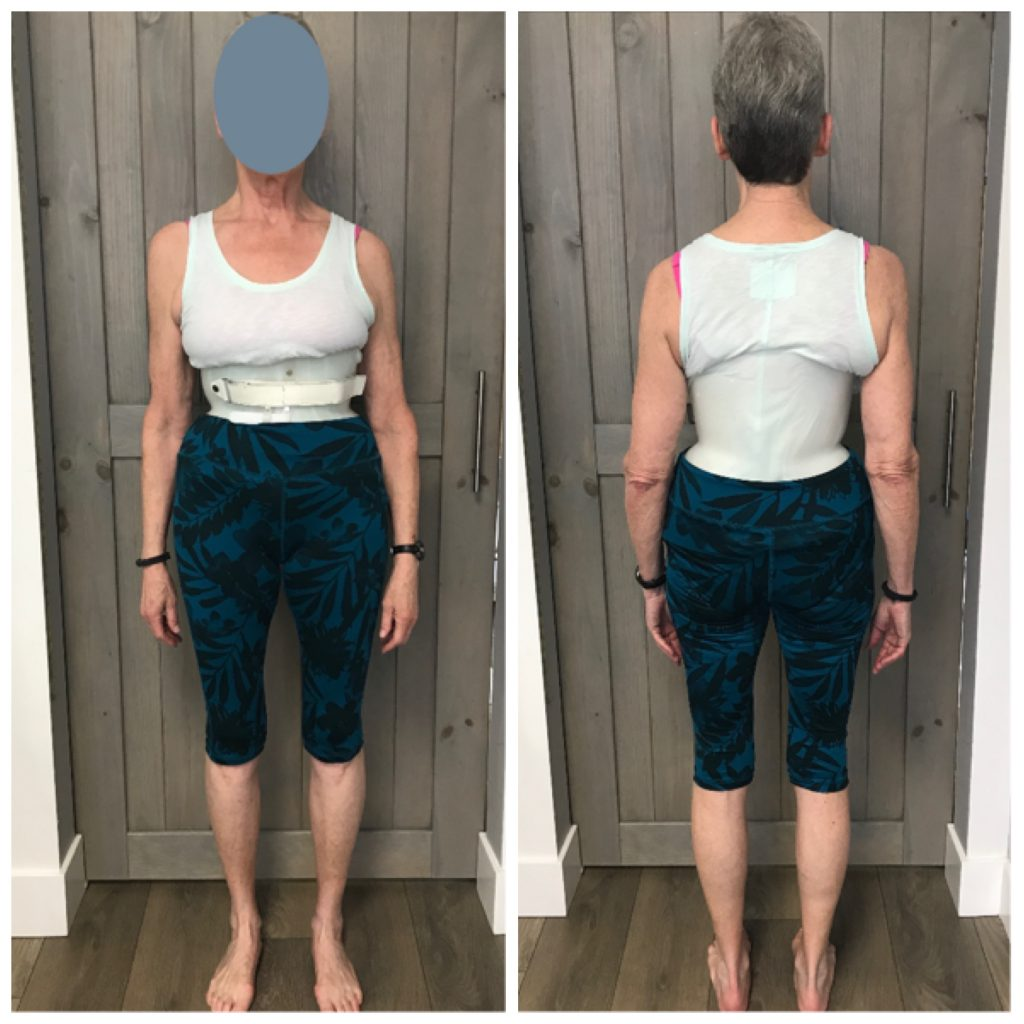 adult woman with custom designed scoliosis brace